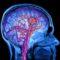 ¿Cuáles son los grados de la encefalopatía?