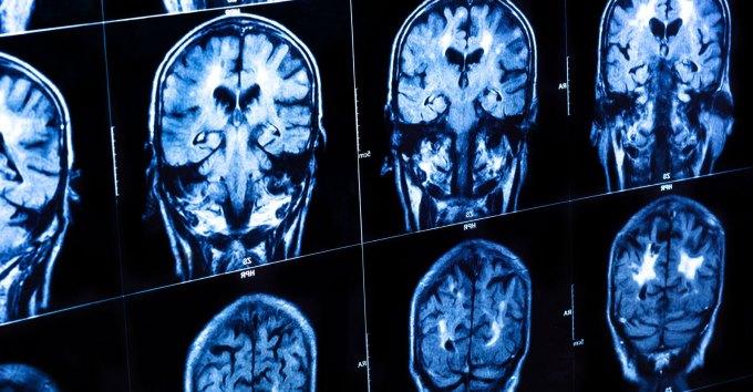 Causas de encefalopatía traumática crónica